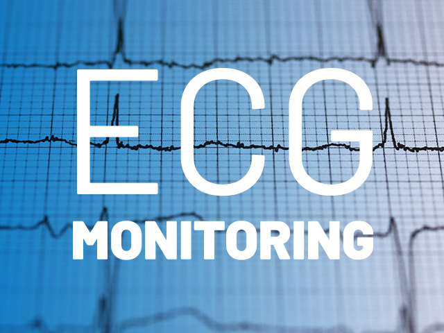 ECG scans on graph paper representing ECG monitoring