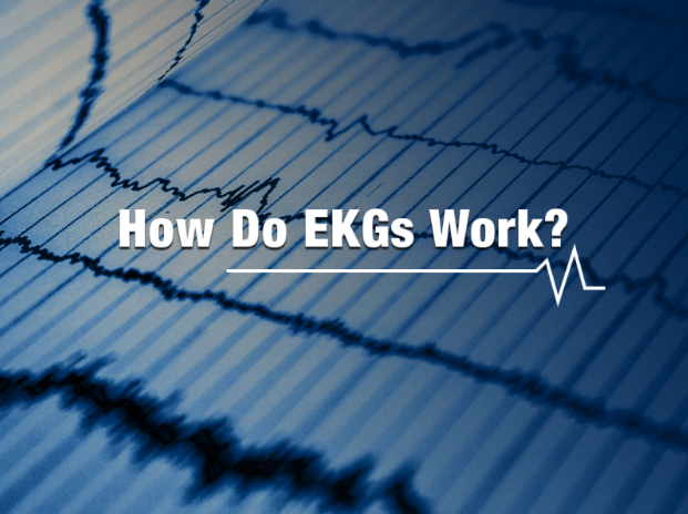 Graphic for How Do EKGs Work blog for Transcontinental Advanced Coatings